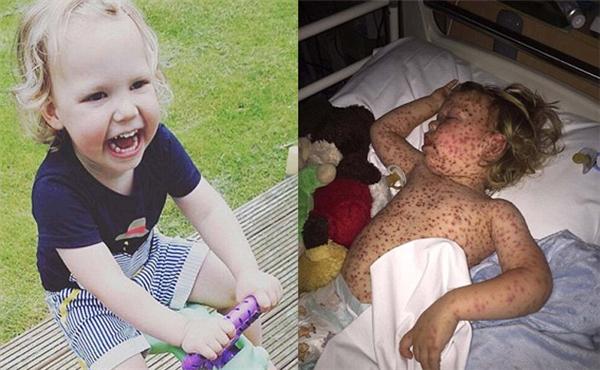 Cậu bé đượckê kháng sinh và thuốc uống cho bệnh nhiễm trùng nhưng tình hình không khả quan mấy.