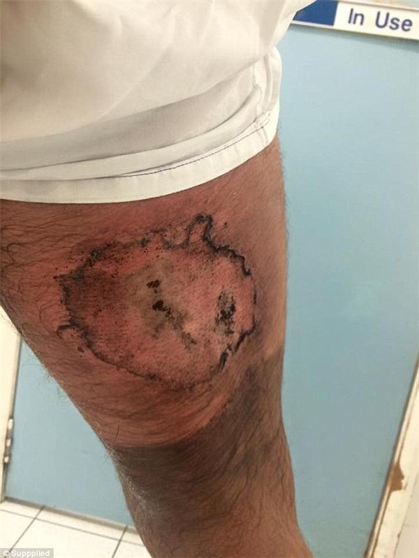 Vết phỏng cấp độ 3 đã khiến Gareth mất đến 3 lớp da và phải thực hiện phẫu thuật cấy ghép da.