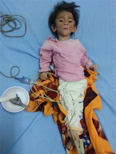 Trước đó, vào khoảng đầu tháng 7, bé Yến Nhi được Thanh Tâm và những người bạn phát hiện bé bị suy dinh dưỡng nặng. Dù đã 14 tháng tuổi nhưng bé chỉ nặng 3.5kg. Ảnh: Internet