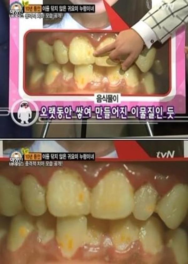 Hàm răng khiến nhiều người khiếp sợ.
