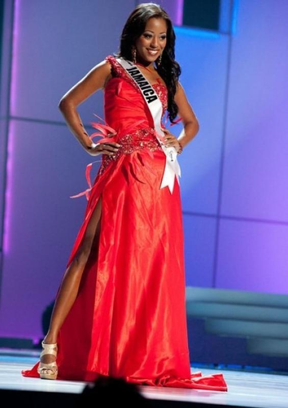 Hoa hậu Hoàn vũ Jamaica qua đời ở tuổi 30 vì bệnh thiếu máu