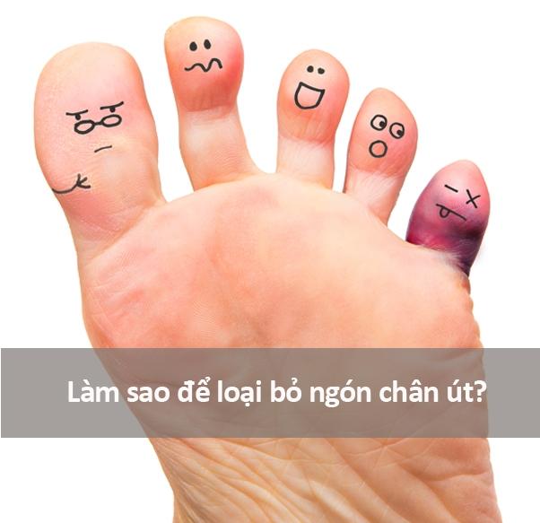 Có nhiều người cho rằng ngón chân út quá vô dụng, cần cắt bỏ ngay và luôn.