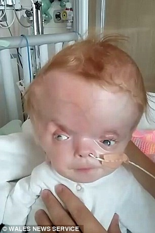 Thương bé gái 7 tháng tuổi mỗi ngày phải đối diện với tử thần