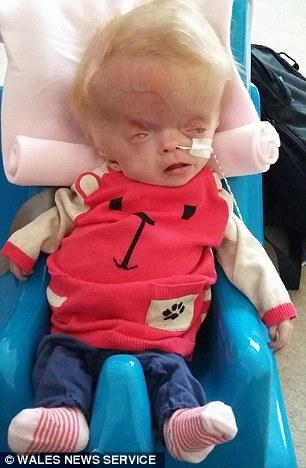 Gương mặt biến dạng của cháu bé 7 tháng tuổi khiến không ít người phải xót xa.