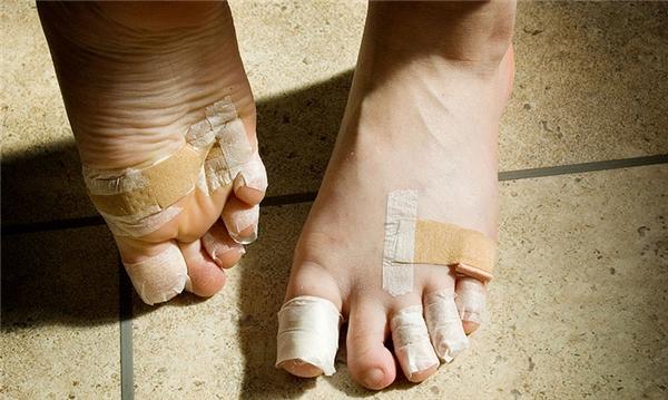 Các ngón chân chi chít băng bó như thế này là chuyện thường thấy với các vũ công chuyên nghiệp.