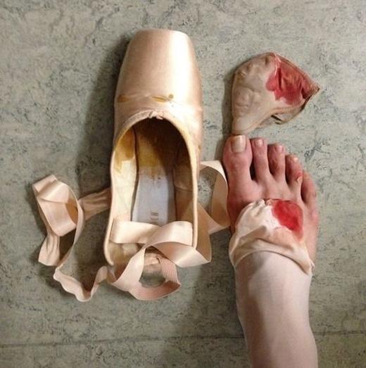 Nữ vũ công bước xuống sân khấu với đôi chân rướm máu vốn chẳng phải chuyện kì lạ gì.