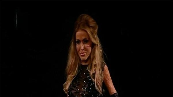 Đánh ghen: Cô gái chịu đựng bộ mặt quỷ sau lớp mặt nạ suốt 2 năm