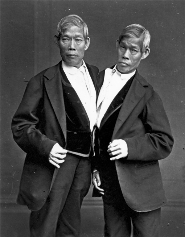 Cặp song sinh xứ Xiêm. (Ảnh: Internet)