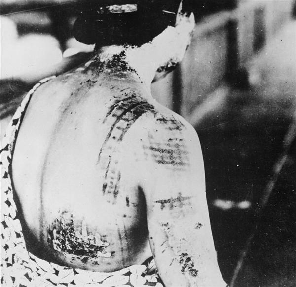 Những vết thương cháy xém do nhiệt độ của quả bom gây ra.