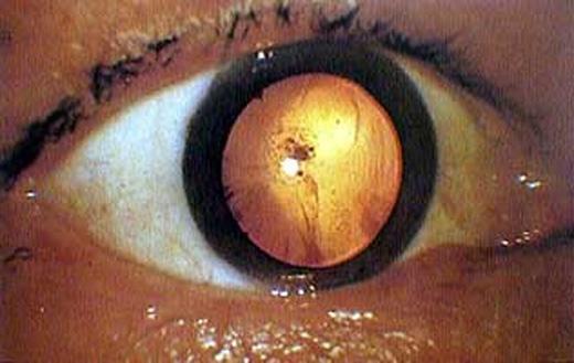 Mắt một người bị đục thủy tinh thể do ảnh hưởng từ vụ nổ.