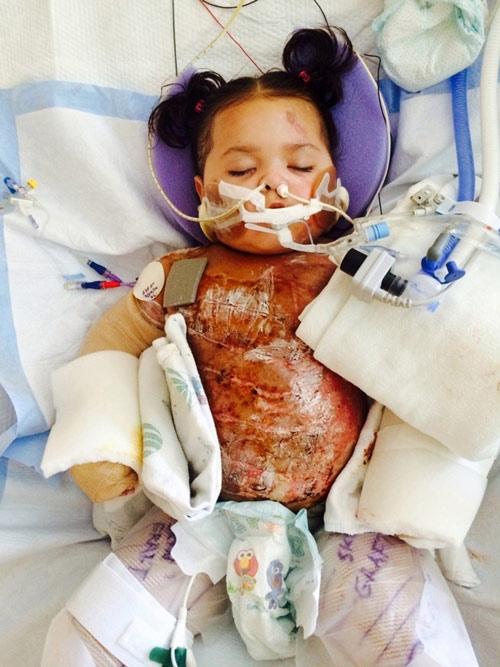 Khâm phục cô bé 3 tuổi bỏng dầu toàn thân chiến thắng Tử thần