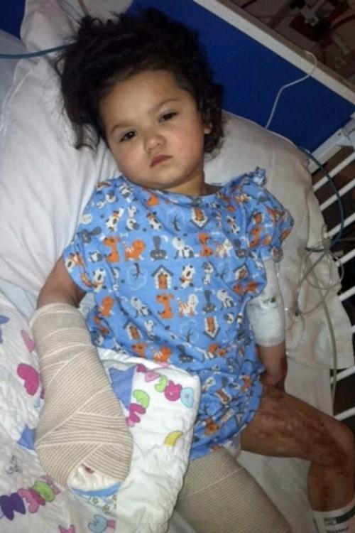 Bé Mia với cơ thể bỏng nặng cấp độ 3 đang được điều trị trong bệnh viện