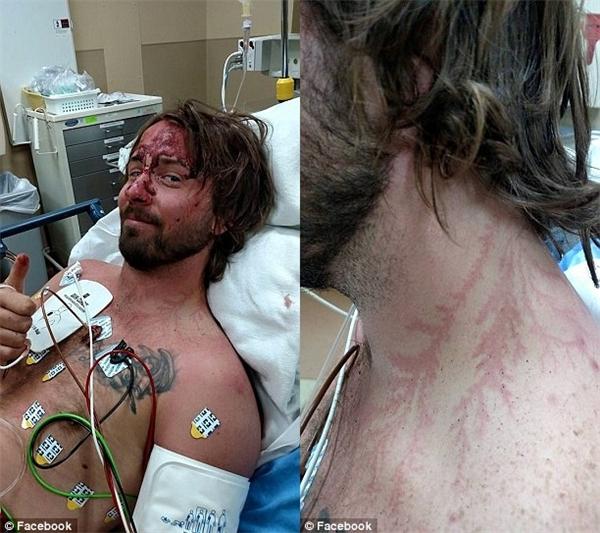 Jonathan chỉ chịu ảnh hưởng một phần của trận sét đánh trong khi người bạn Rambo đã gánh hết cho anh và lìa khỏi cõi đời.(Ảnh: Daily Mail)