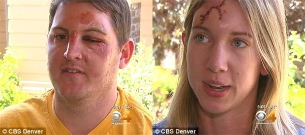 Hai người trong nhóm leo núi là Mary Prescott (phải) bị sét đánh, ngã đập đầu vào một tảng đá, phải khâu 40 mũi còn Will Chandler (trái) bị thương nặng ở mắt trái. (Ảnh: Daily Mail)