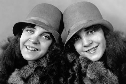 Daisy và Violet Hilton(Ảnh: Internet)