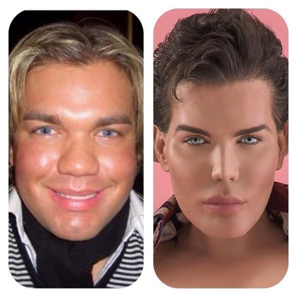 """Gương mặt trước và sau phẫu thuật thẩm mỹ của anh chàng """"búp bê Ken""""."""