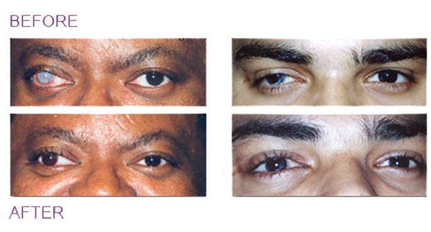 Với những người mắt bị đổi màu hoặc dính sẹo mà không muốn làm người khác sợ, họ có thể xăm màu lên giác mạc để che chúng đi. Tuy nhiên phương pháp này chỉ áp dụng với những đôi mắt đã mù hoàn toàn.