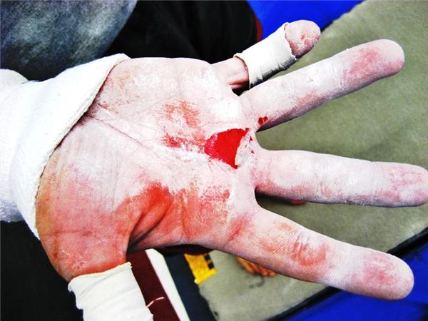 11. Dù đau đớn thế nào, bạn vẫn phải tiếp tục tập luyện.  12. Rách da, bầm tím và sưng phồng liên tục là điều không thể tránh khỏi.