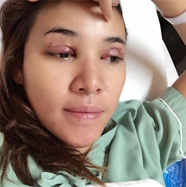 Các bác sĩ vẫn chưa thể trả lờiliệu đôi mắt cô có thể trở lạibình thường hay không.
