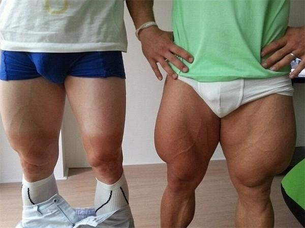 Cặp đùi của vận động viên đua xe đạp người Đức Robert Forstemann và vận động viên người New Zealand Greg Henderson có thể khiến bạn liên tưởng tới mộtkhối u ác tính nào đó. Nhưng thực chất đó chỉ là cơ bắp hình thành sau những tháng ngày luyện tập và thi đấu miệt mài mà thôi.