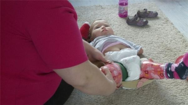 Hiện tại cô bé phải nhờ vào sự trợ giúp của tay và chân giả.