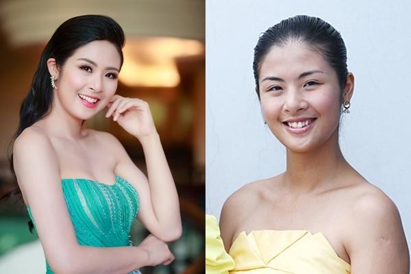 Dung nhan Ngọc Trinh cùng dàn mỹ nhân trước và sau khi cải tạo răng