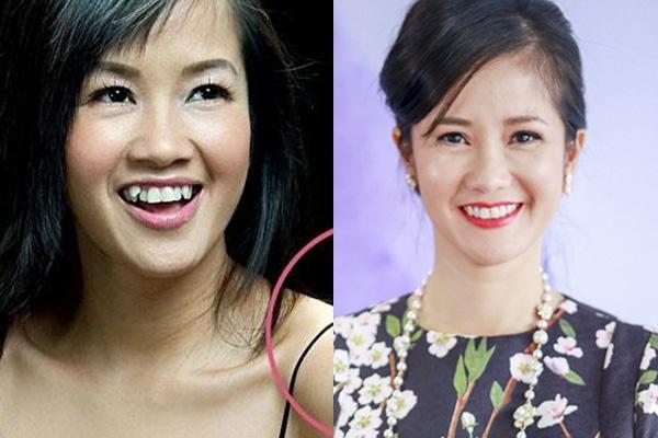 Diva Hồng Nhung cũng chọn phương án bỏ đi răng khểnh và điều chỉnh lại vị trí các răng cho đều hơn.