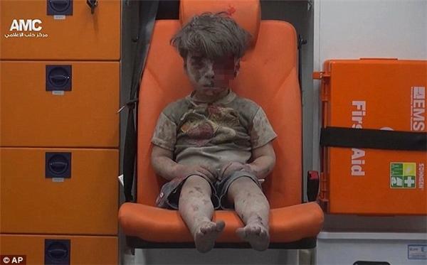 Hình ảnh cậu bé Syria bị thương làm chấn động cả thế giới