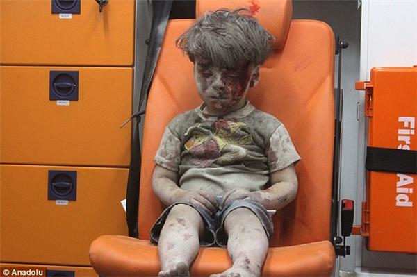 Cậu bé Omran cùng một số em nhỏ khác khi được giải cứu.(Ảnh: Anadolu)