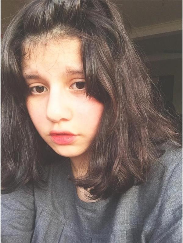 Ebra Lesở hữu gương mặt bầu bĩnh dễ thương.(Ảnh: Internet)