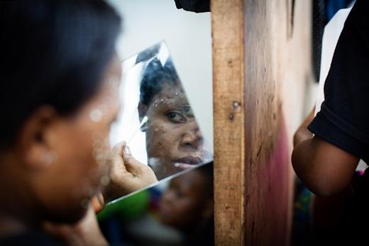 Kinh hoàng thế giới tẩy trắng da của các cô gái châu Phi