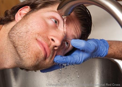 Tốt nhất dùngnước sạch chảy từ vòi nước ấm trong ít nhất 20 phút.