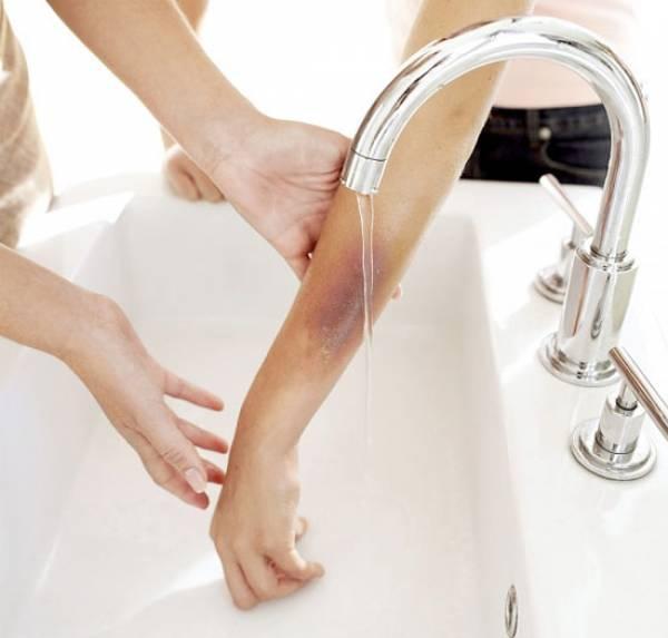 Ngay khi phát hiện, bạncần rửa vết bỏng bằng nước mát liên tục.