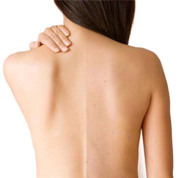 Vùng da trên lưng khá nhạy cảm và dễ bị kích ứng.(Ảnh: Internet)