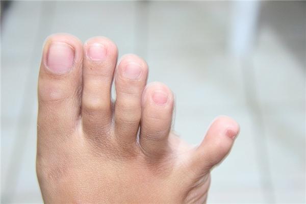 Nếu có thể tự động tách ngón chân út của mình ra khỏi các ngón còn lại, bạn là người yêu thích mạo hiểm, phiêu lưu và rất đào hoa.