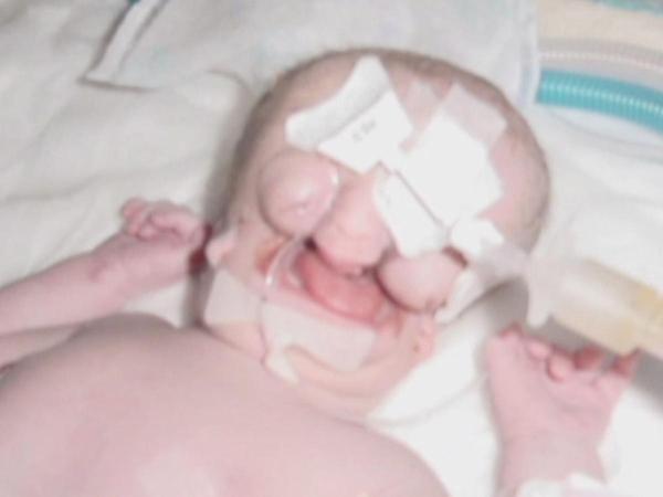 """Juliana Wetmore làbé gái nổi tiếng ở nước Mỹ với tên gọi """"bé gái không mặt"""" vì mắc phải hội chứngTreacherCollins."""