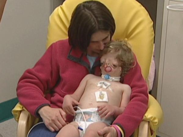 Bố mẹ Juliana luôn ở bên cạnh và động viêncô bé trong mỗi lầnphẫu thuật...