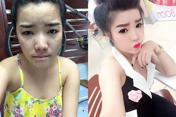 Lê Thị Tú Ngà (sinh năm 1995) từng nhận được sự quan tâm của đông đảo cộng đồng mạng khi chia sẻ hình ảnh mặt mộc. Sau 4 năm đấu tranh tư tưởng, cô gái này đã quyết định để lộ gương mặt không son phấn với nhiều vết rỗ, sẹo và mụn.
