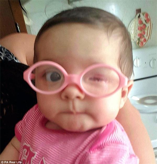 Izabella Myerskhi vừa mới sinh ra mắt trái đã không có nhãn cầu.