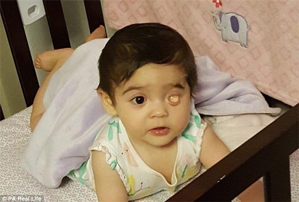 Khối nhựađảm bảo khuôn mặt của Izabella phát triển đồng đều khi mắt trái của em đang bị xệ xuống