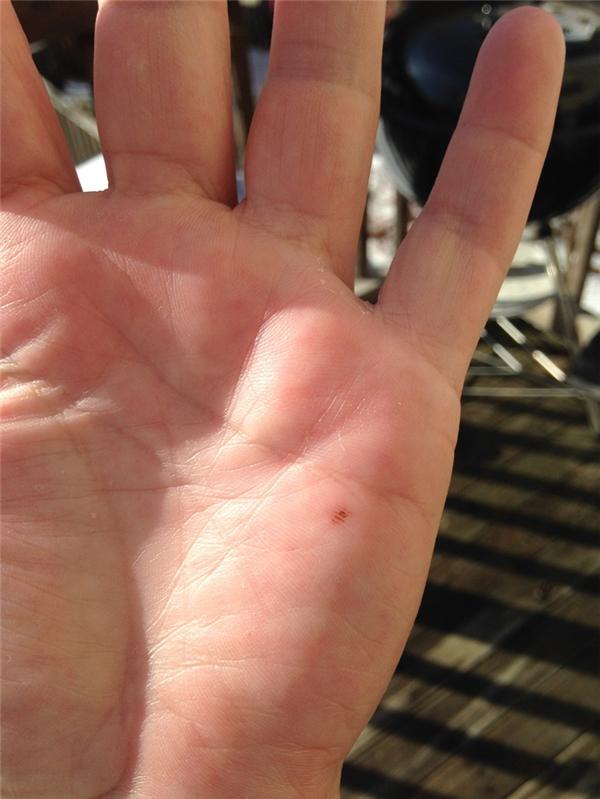 Nốt ruồi mọc giữa bàn tay, phú quí cả đời mà không hay