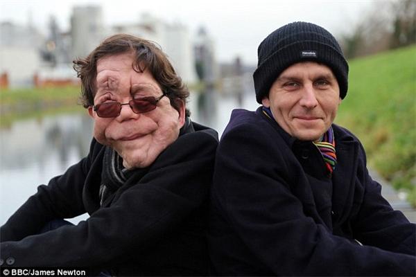 Adam (trái) và Neil (phải) vốn là anh em sinh đôi giống nhau như hai giọt nước, nhưng giờ đây...
