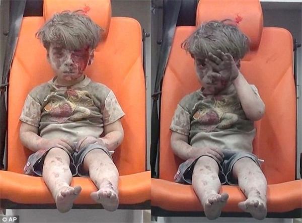 Cậu bé Omran 5 tuổi sống sót trong trận không kích hồi tuần trước.(Ảnh: AP)