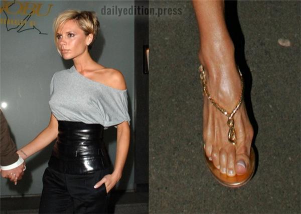 Cận cảnh ngón chân cái lồi to biến dạng của Victoria Beckham - người nổi tiếng với những đôi giày cao gót lênh khênh.