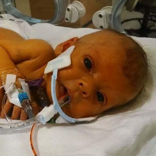 Vì căn bệnh quái ác, Sophia buộc phải nằm viện liên tục với đủ loạiống dây y tế trên người.