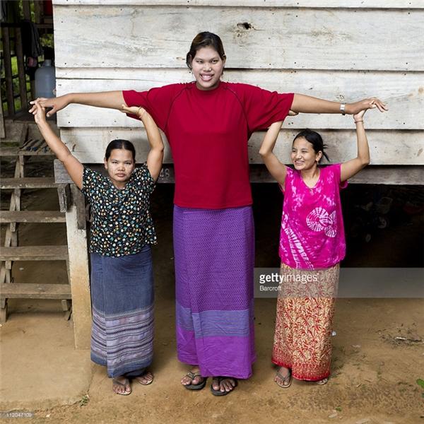 Malee Duangdeevới chiều cao khủng khiếp 2m12, từngđược Sách Kỉ lục Guinness công nhận là người phụ nữ cao nhất thế giới.