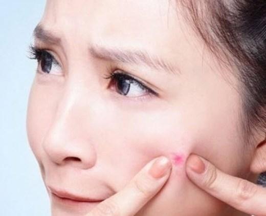 Các thói quen xấu dễ ảnh hưởng đến làn da bị mụn (Nguồn internet)