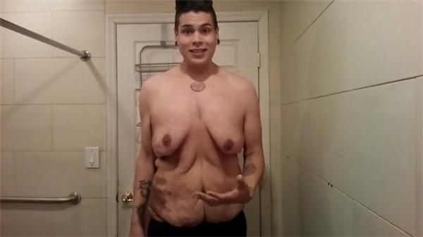 Sau nỗ lực giảm cân, chàng trai thất kinh với ngoại hình mới của mình
