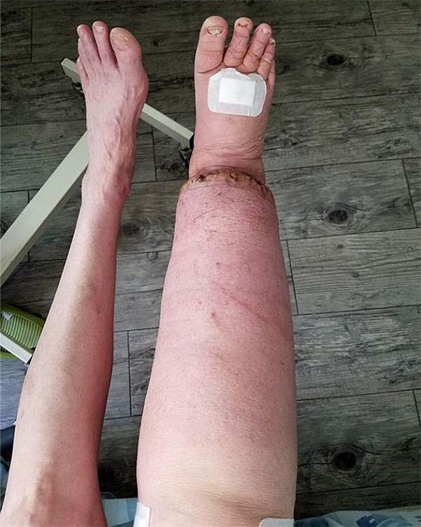 Sự chênh lệch kích cỡ rõ rệt giữa hai bên chân cô Roseanne.