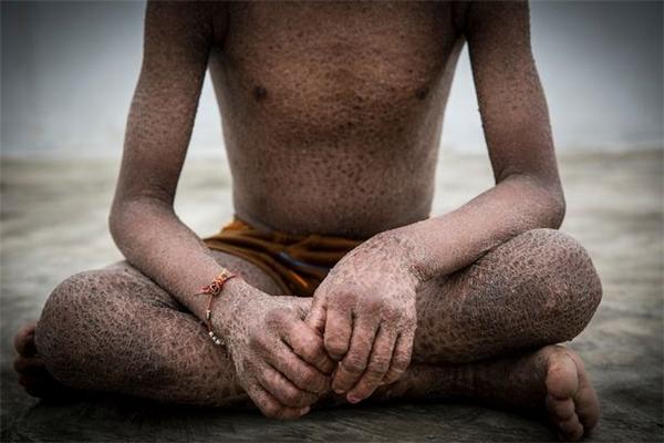 Sayali(ảnh trên) và em traiSiddhant (ảnh dưới) đã không may cùng mắc phải căn bệnh khiến da các em cứ mỗi 10 ngày lại bong tróc và lột hết ra như da rắn.